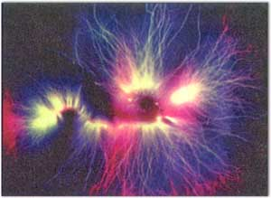 Kirlian Photograph of Living Lentil Sprout Energy